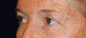 Eyelid Surgery - Blepharoplasty