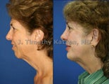 Chin implant after massive weight loss