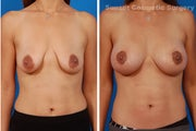 Benelli Mastopexy and Nipple Enhancement