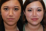 Neck Liposuction, and Silicone Lip Injections.