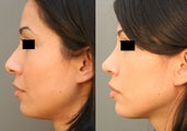 Beverly HIlls/Los Angeles Primary Rhinoplasty