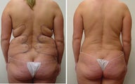 liposuction hips and back
