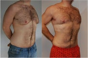 Male Before and After Lipo Chest and Abdomen