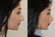 Revision Rhinoplasty. 3 months post-op.