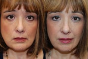 Silikon-1000 for undereyes, nasolabial folds, lips and corners of mouth.