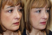 Silikon-1000 for undereyes, nasolabial folds, lips, and corners of mouth.