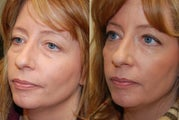 Lower eyelid rejuvenation with Silikon-1000