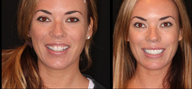 Before & After Smile Make-Over-Upper 8 Veneers