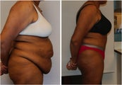 Large Abdominoplasty 3 months before and after