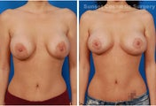 Repair of Botched Breast Lift with Reduction of Areolae