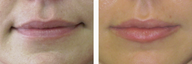 Juvederm for Fuller, Plump Lips