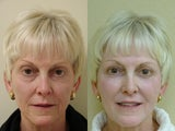 55 year old female treated for volume loss of the face with fat transfer (grafts)