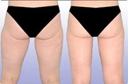 Smart Lipo: Buttocks/Thigh Area