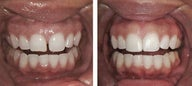 Diastema Dental Bonding