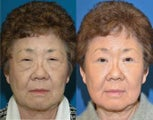 Asian blepharoplasty and ptosis repair.