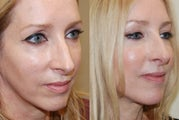 Silikon-1000 treatment to lower eyelid grooves and cheeks. Botox.