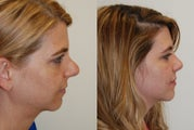 Revision Rhinoplasty Surgery. 8 months post-op.