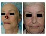 Reconstruction of a Full Thickness Nasal Defect after Mohs Surgery