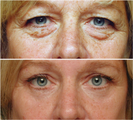 Laser resurfacing, Blepharoplasty