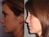 Rhinoplasty revision