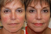 Non-Surgical Facial Rejuvenation with Silikon-1000
