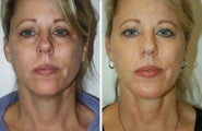 Neck Lift, Neck Lipo, Chin Implant