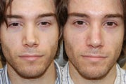 Non-Surgical Rhinoplasty with Silikon-1000 for permanent results.