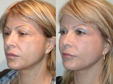 SLUPlift Neck & Jowl lift