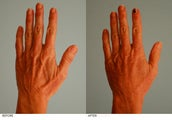 Hand Fat Grafting