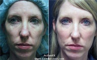 Active FX Fractional Skin Resurfacing