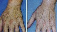 Hand age spot removal by laser treatment