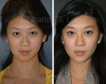 Blepharoplasty, Rhinoplasty and Chin Augmentation