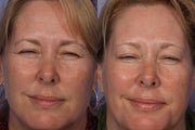 Botox to Crows Feet