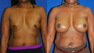 Breast reconstruction with tissue expanders followed by 700cc high profile submuscular silicone augmentation