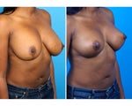 Breast Implant Removal and Replacement