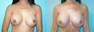 Large Breast Implant Revision/Revision
