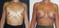 Breast augment