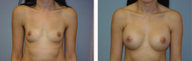 Breast augmentation with breast implants