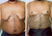 Male Breast reduction and lift-Gynecomastia
