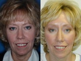 Endoscopic Brow Lift, Upper and Lower Blepharoplasty