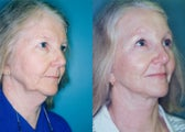 Endoscopic Browlift, 4 lid Blepharoplasty & Modified Facelift