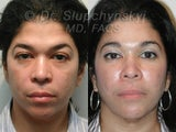 Endoscopic Brow Lift, Lower Blepharoplasty & Blue Peel