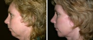 44 year old female, chin implant