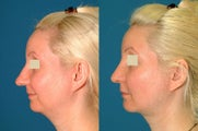 Combination: Rhinoplasty, Chin Implant, & Neck Liposution