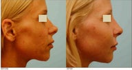 Revision/Corrective Rhinoplasty and Cheek Augmentation
