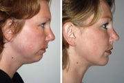 Liposuction of chin with a chin implant
