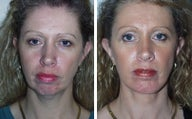 Facelift with Chin Implant, Dermabrasion