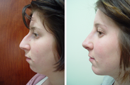22 year old female who underwent liposuction of face and neck