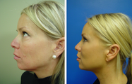 36 year old female who underwent liposuction of face
