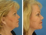 Facial plastic surgery with neck liposuction